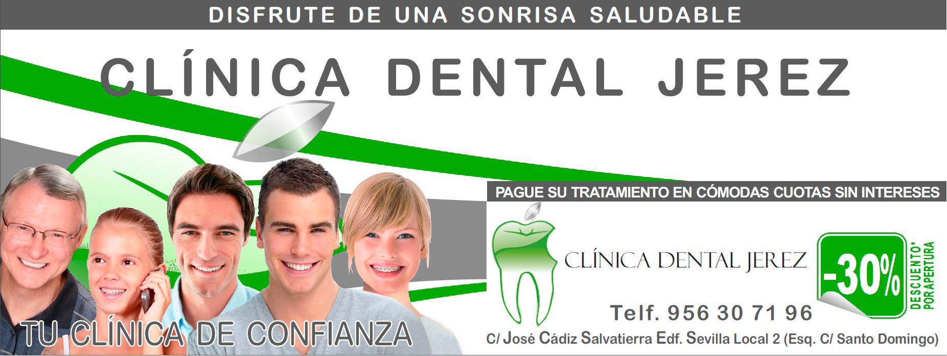 Promociones cl nica dental jerez for Clinica dental jerez de la frontera