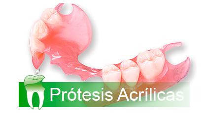 Protesis acrilicas