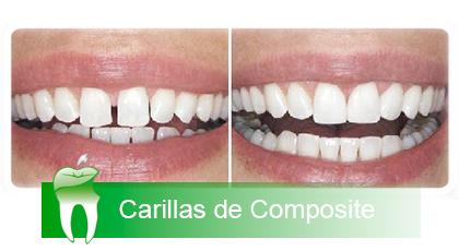 Tratamientos clinica dental jerez - Como alinear los dientes en casa sin brackets ...