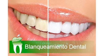 Blanqueamiento con f rulas en domicilio clinica dental jerez for Clinica dental jerez de la frontera