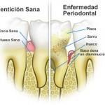 enfermedad-periodontal