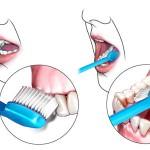 limpieza_dental